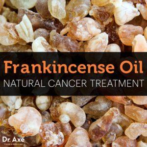 Frankincense oil cancer
